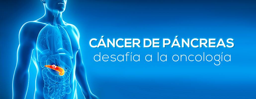 Los desafíos del cáncer de páncreas a la oncología - Fundación ...